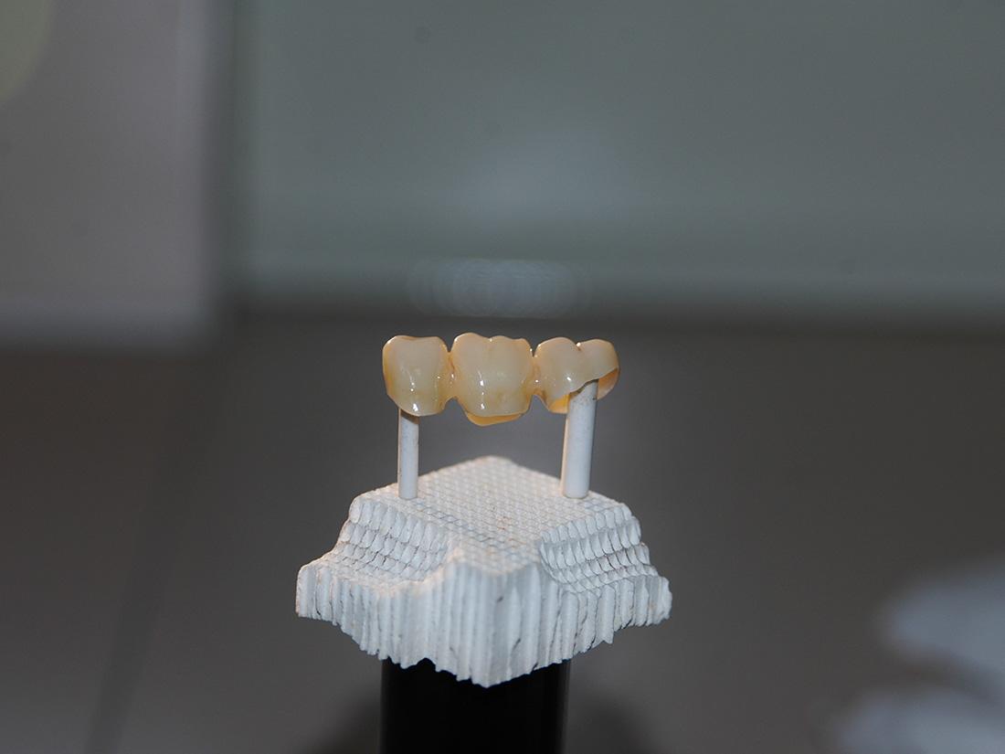 Monolitiche in zirconio - Odontotecnica Castellana