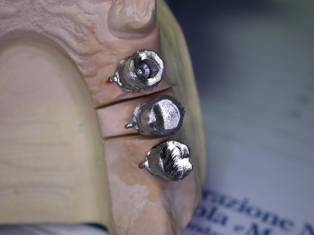 Corone e ponti - Odontotecnica Castellana