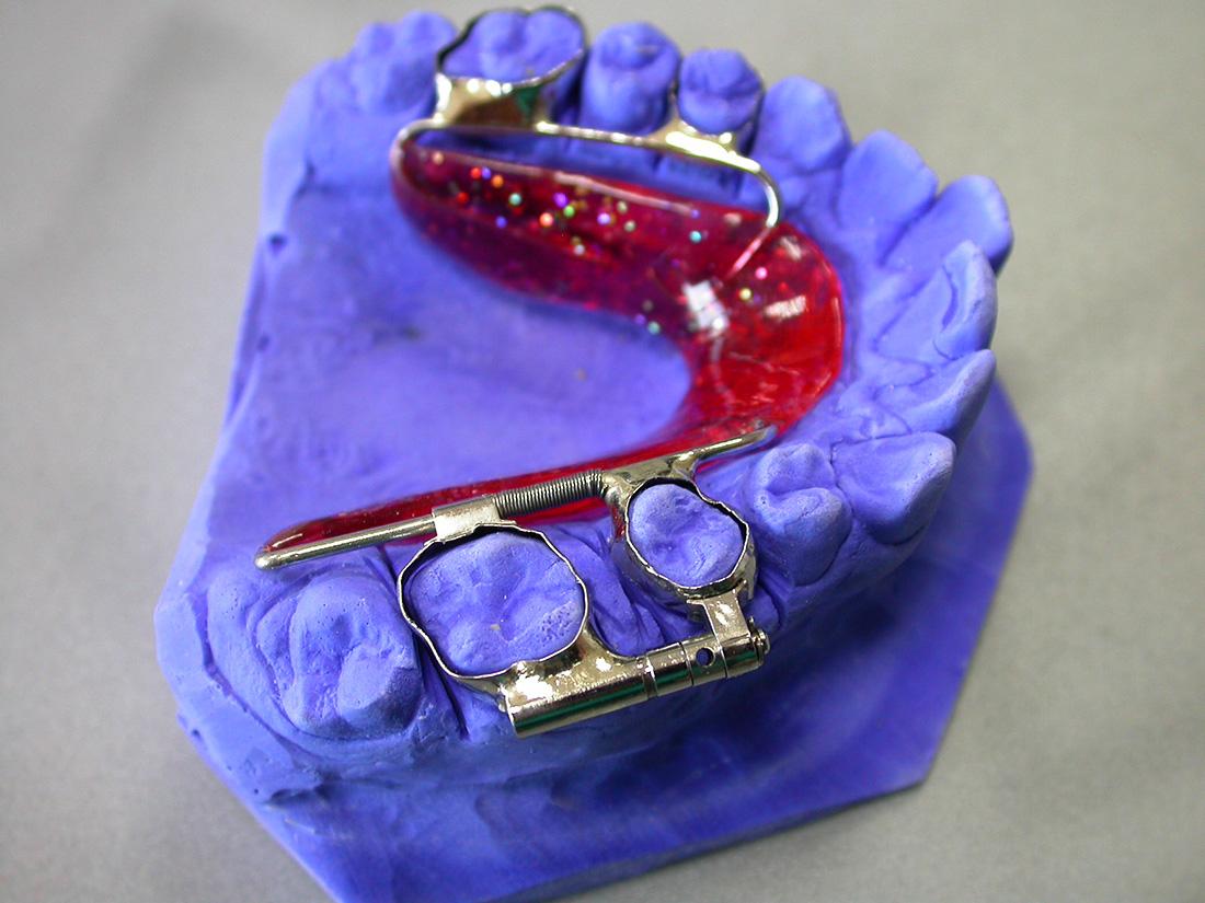 Distalizzatori - Odontotecnica Castellana
