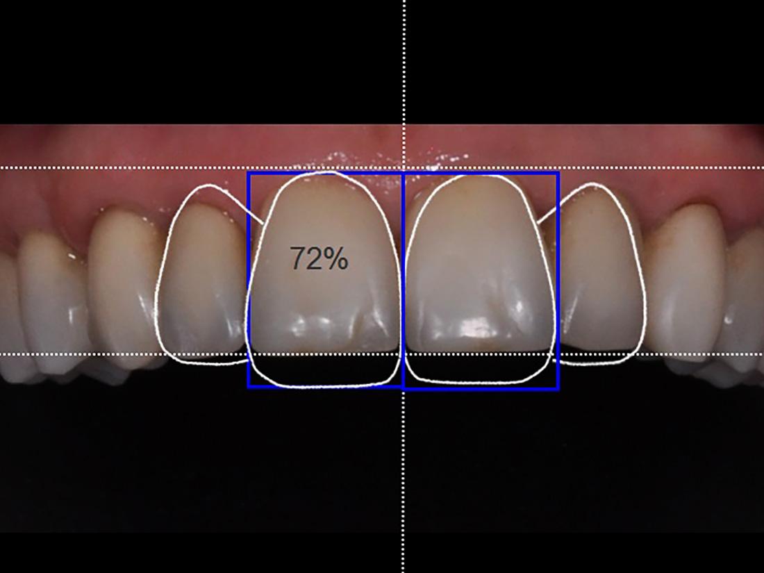 Digital Smile Design - DSD - Odontotecnica Castellana