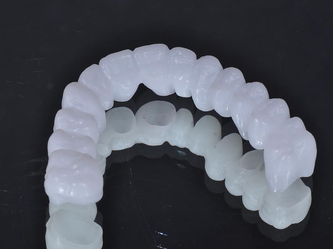 Prove volumetriche - Odontotecnica Castellana