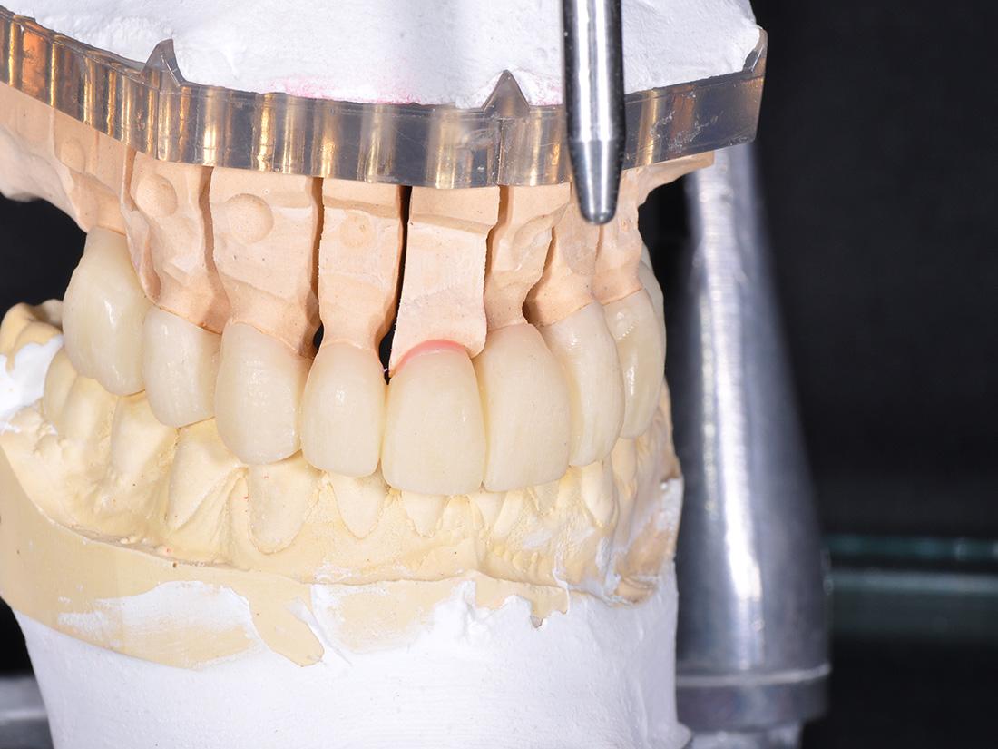 Protesi Provvisoria - Odontotecnica Castellana