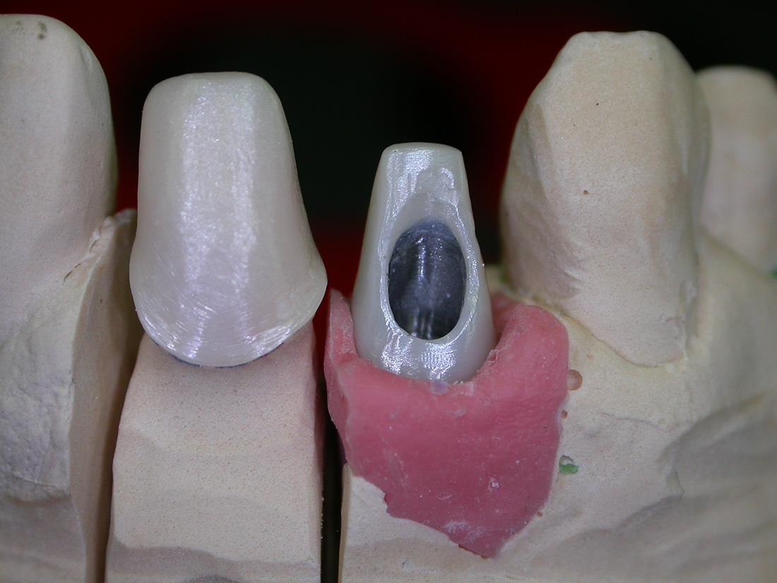 Abutment (Monconi) - Odontotecnica Castellana
