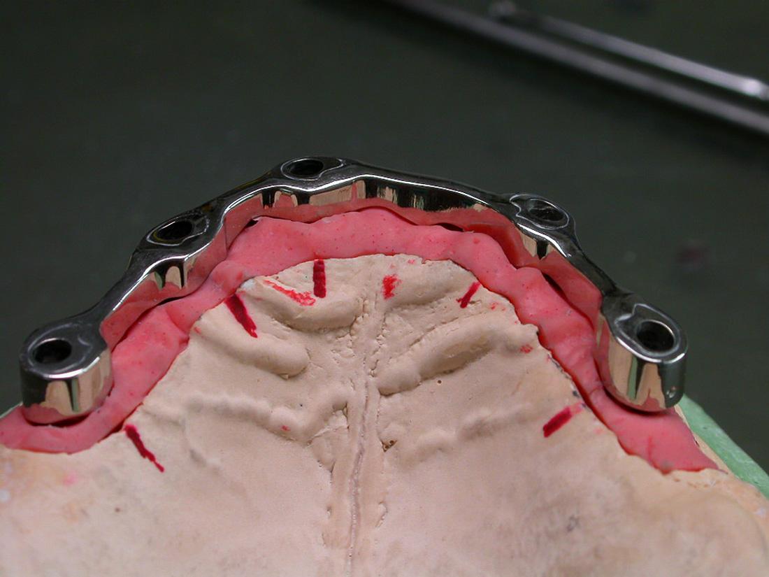Barre - Odontotecnica Castellana