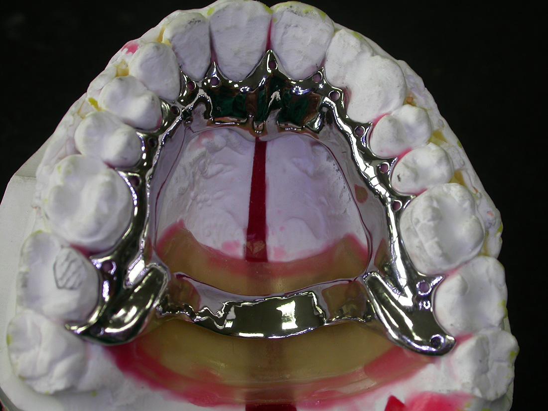 Placche di Rinforzo - Odontotecnica Castellana
