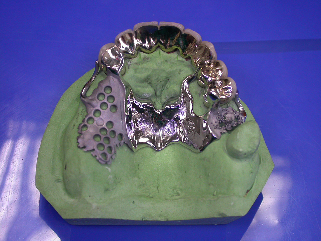 Protesi Scheletrica - Odontotecnica Castellana