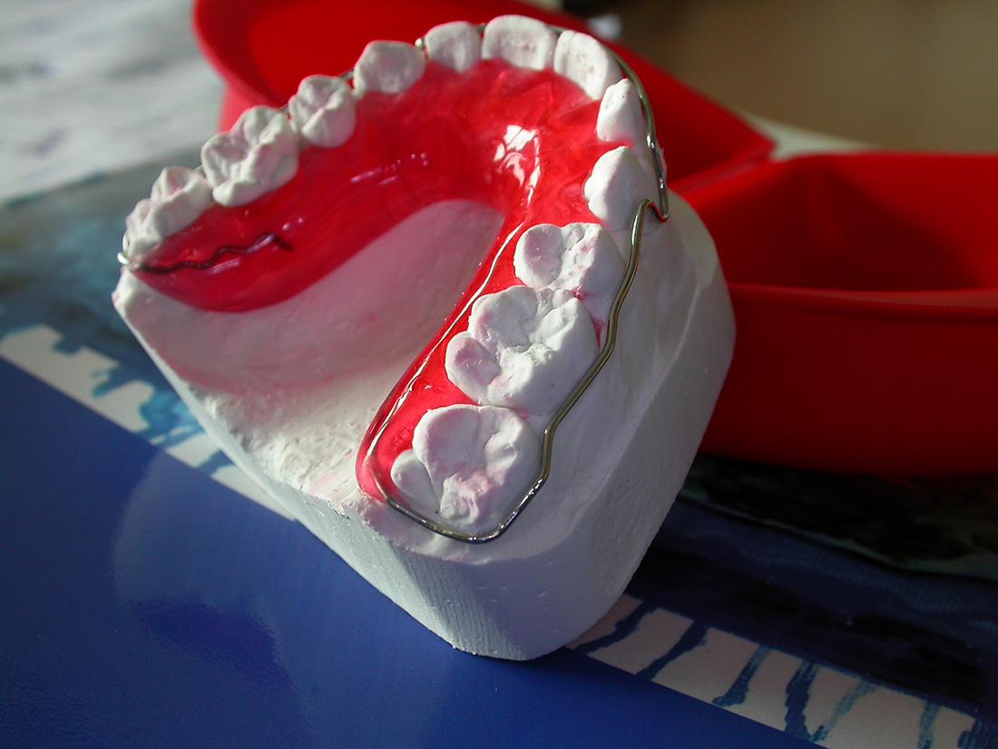Placca di Begg - Odontotecnica Castellana