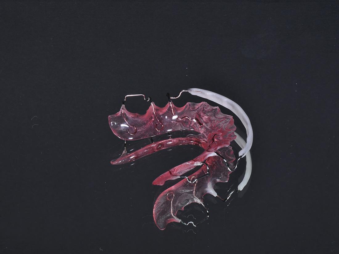 Placca di Hawley - Odontotecnica Castellana