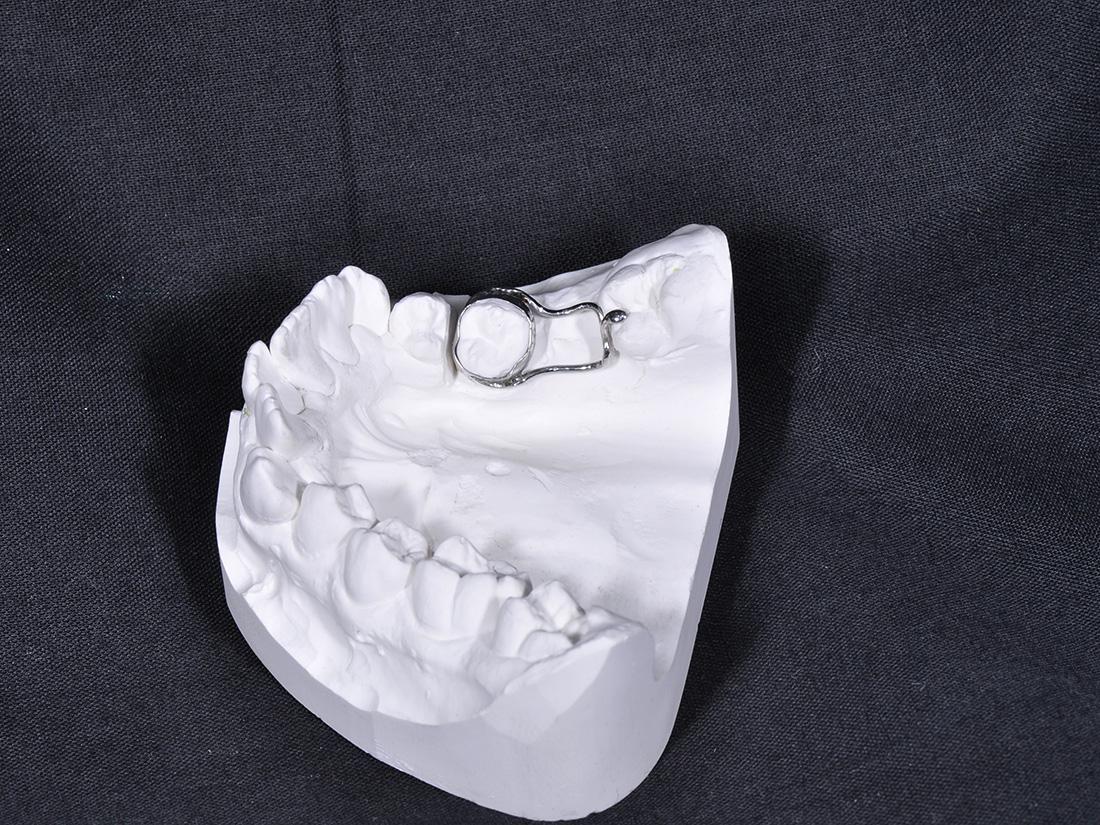 Mantenitori di spazio - Odontotecnica Castellana